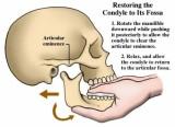 Phòng ngừa bệnh rối loạn thái dương hàm