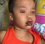 4 trẻ mầm non ăn nhầm bột thông bồn cầu