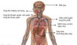 Tác hại của thuốc lá đối với sức khỏe sinh sản
