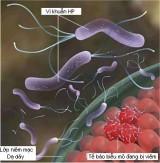 Vi khuẩn HP có đáng sợ?