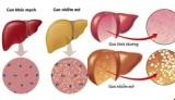 Những dấu hiệu nhận biết bệnh gan nhiễm mỡ