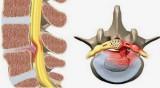 Bệnh đau lưng và biện pháp phòng ngừa