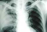 Đề phòng viêm phổi khi chuyển mùa