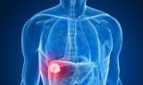 10 căn bệnh ung thư có nguy cơ cao với nam giới