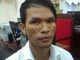 Mở rộng điều tra đối tượng ngược đãi cháu bé người Campuchia