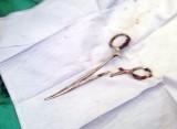 Phẫu thuật lấy chiếc kéo han rỉ 18 năm nằm trong bụng bệnh nhân