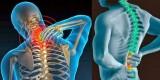 Chớ xem thường đau mỏi vai gáy
