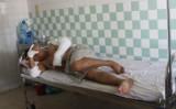 Nổ thiết bị trong Nhà máy gạch Đồng Tâm, 9 người bị thương