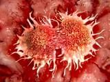 Các nhà khoa học Nga và Thụy Điển tìm ra cách diệt tế bào ung thư