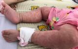 Hơn 3.300 ca bệnh nghi sởi tại TP Hồ Chí Minh trong 3 tháng đầu năm