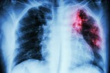 Xác định loại gene mở ra hy vọng cho bệnh nhân ung thư phổi