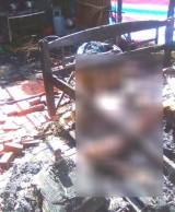 Tạm giữ nghi can tẩm xăng đốt chồng ở Kiên Giang