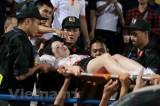 Đang điều tra vụ nữ cổ động viên bị pháo sáng bắn trúng người