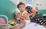 Gia tăng trẻ bị bệnh tay chân miệng tại Thành phố Hồ Chí Minh