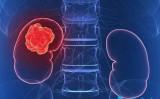 13 dấu hiệu trên cơ thể cảnh báo ung thư thận ngầm phát triển mạnh mẽ