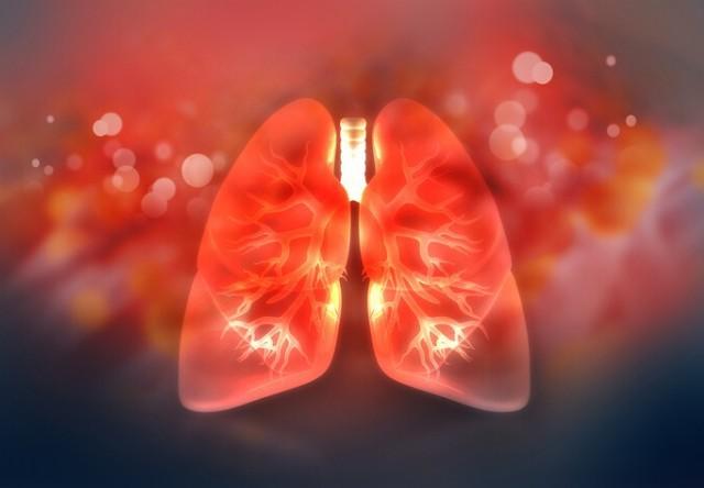 Phương pháp điều trị tế bào gốc nhằm làm giảm Hội chứng suy hô hấp cấp tính đang hứa hẹn thành công trong điều trị Covid-19. Ảnh: TrialSite News