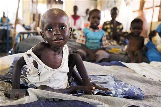 Trẻ em bị suy dinh dưỡng điều trị tại cơ sở y tế ở Aweil, Nam Sudan. (Ảnh: AFP/TTXVN)