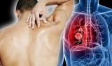 10 dấu hiệu nhận biết đau lưng là vấn đề nghiêm trọng